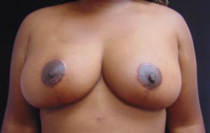 Breast Reduction 1 After