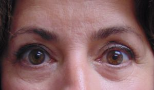 Blepharoplasty 1 After
