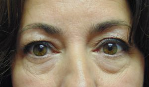Blepharoplasty 1 before