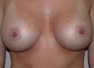 Breast Augmentation Before and After Pictures Jacksonville, FL
