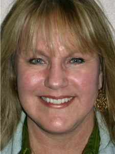 Facelift Before and After Pictures Jacksonville, FL